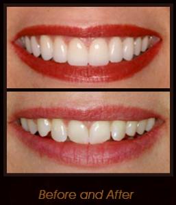 Porcelain Veneers: A Great Smile, Fast | Smile For Life Dental Blog
